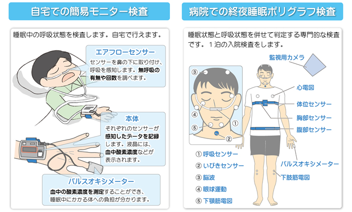 睡眠時無呼吸の検査
