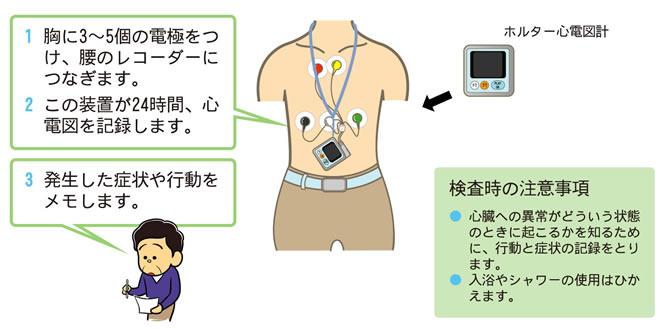 24時間心電図装置
